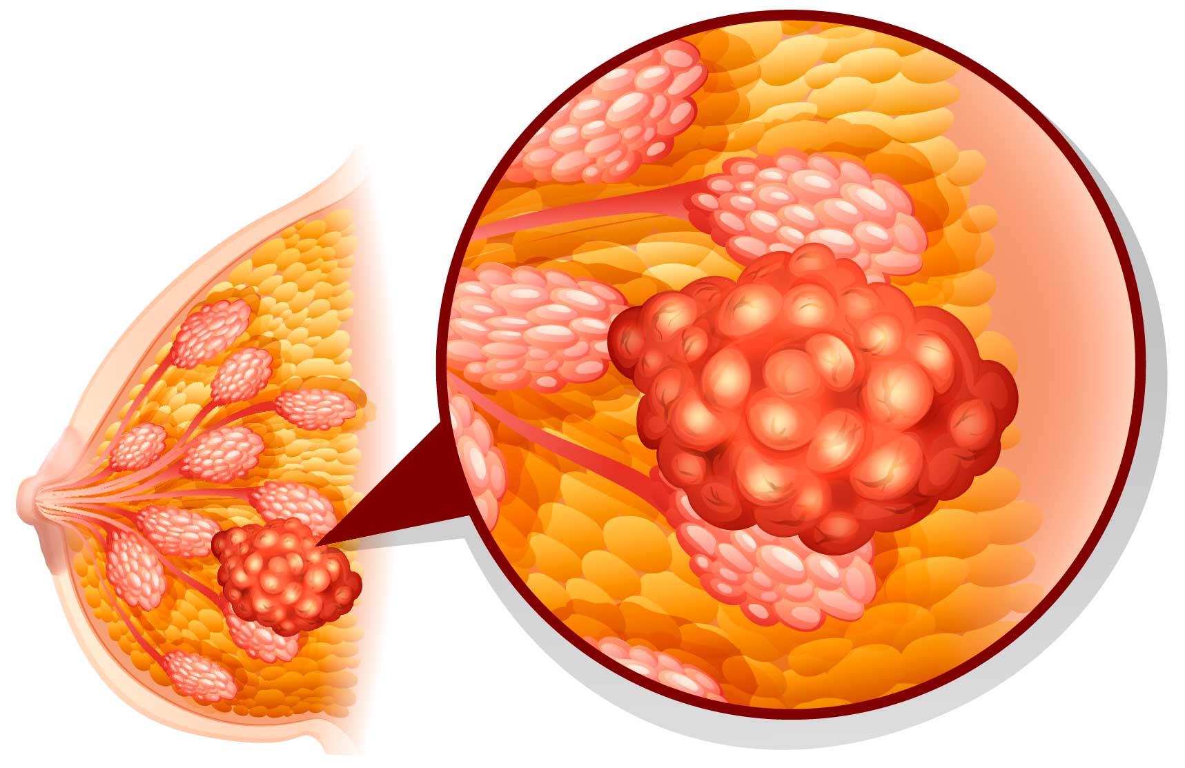 развитие кисты молочной железы