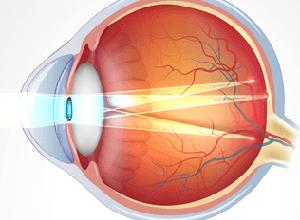 narushenie zreniya astigmatizm chto eto prichiny simptomy lechenie