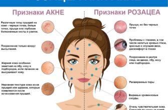 rozacea na lice prichiny u zhenshhin tipy i lechenie